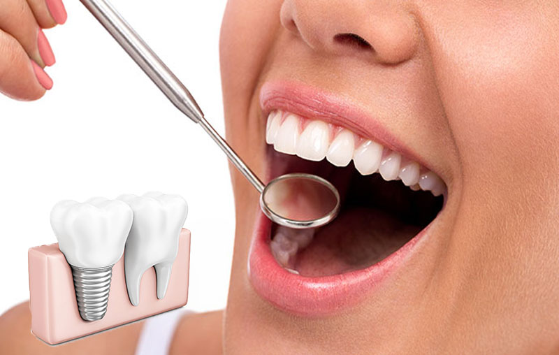 best implant dentist Singapore